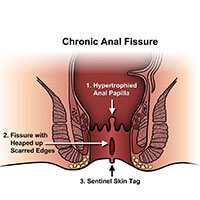 anal fissure, fissure treatment in Pune, best fissure doctor in Pune, ayurvedic treatment for fissure in Pune, Anal Fissure Treatment
